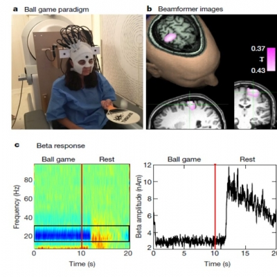 March 2018 New paper on wearable MEG is now published in Nature